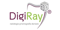 Reduceri DigiRay